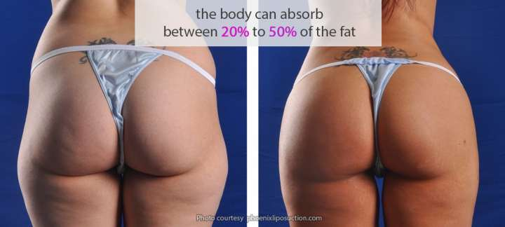 The body absorbs 20% to 50% of the fat during a bbl recovery