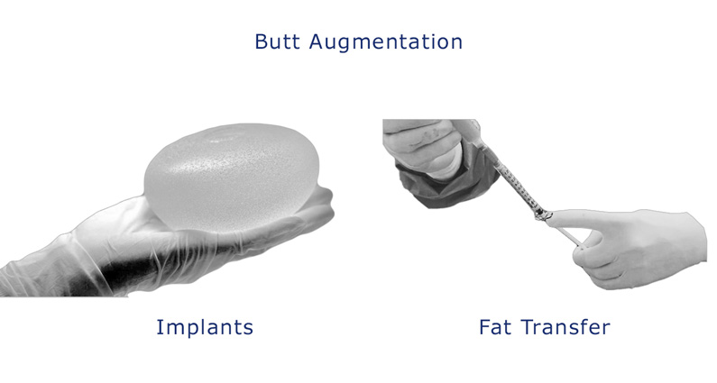 Patients have two surgical options of buttocks augmentation (Implants) or (Fat Transfer)