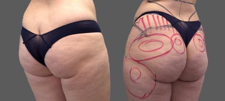 cuanto cuestan los implantes de senos en mexico