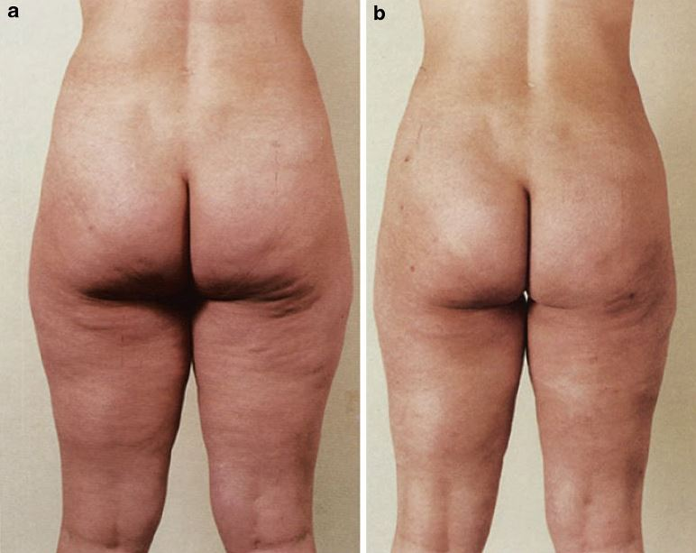 Brazilian Butt Lift Autologous Fat Transfer